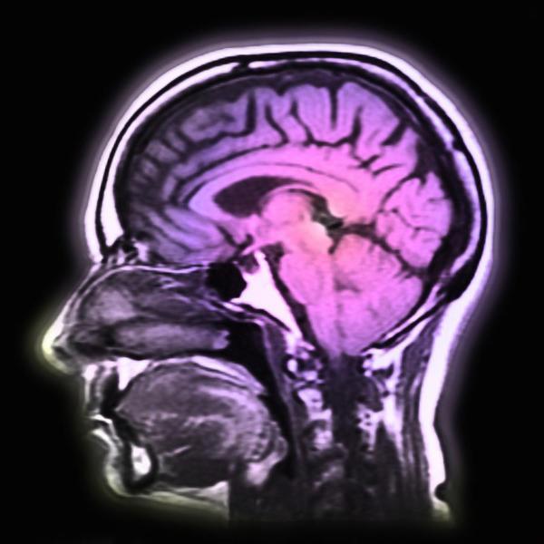"""dokter Marie Baker: """"Door de hogere levensverwachtingen duiken allerlei nieuwe ziektes op"""" ©Getty Image"""