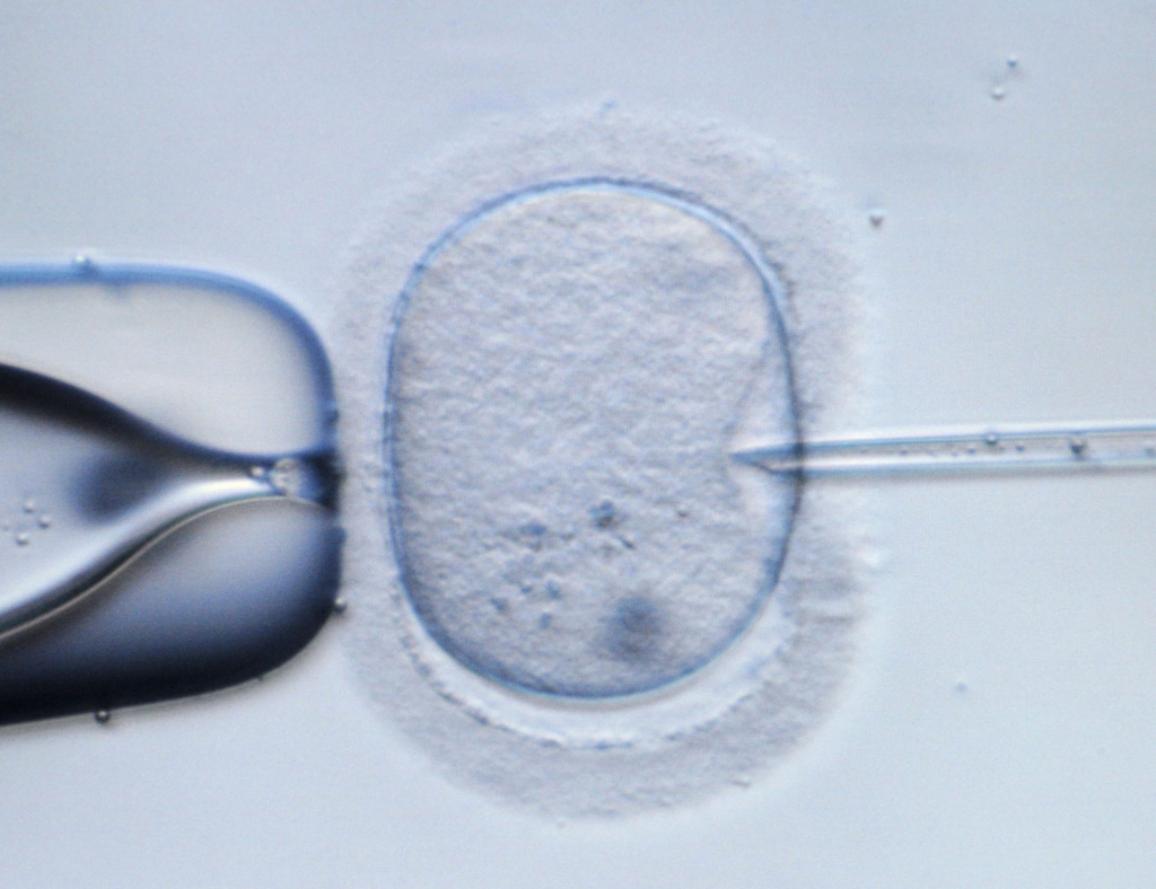 Imagen de un óvulo humano inyectado en una prueba de laboratorio. ©Belga/DPA/R.Hirschberger