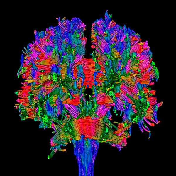 Image en 3D d'un scanner du cerveau