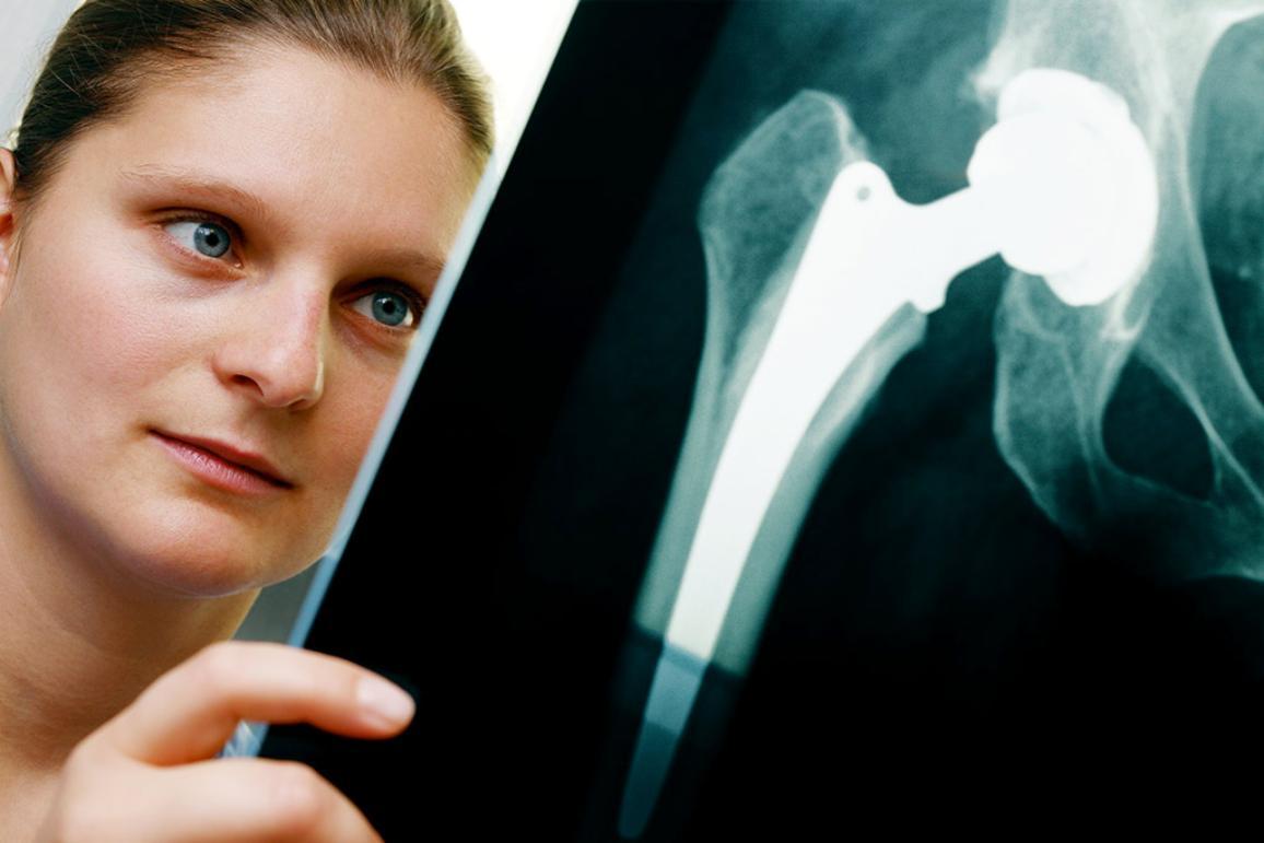 Radiographer studying an X-ray