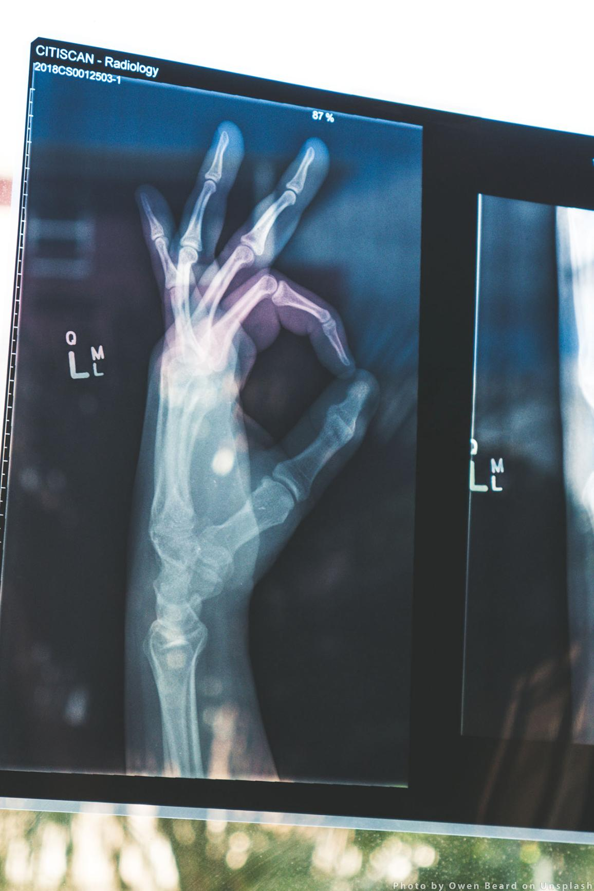 A photo of a radiology. Photo by Owen Beard on Unsplash